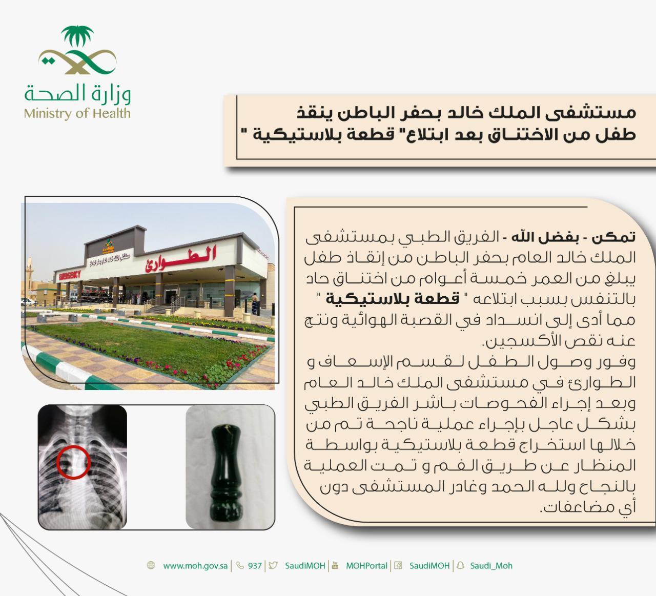 مستشفى الملك خالد بحفر الباطن ينقذ طفل من الاختناق بعد ابتلاع قطعة بلاستيكية