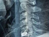 """فريق طبي ينجح في استئصال انزلاق غضروفي بالرقبة لمريضة في """"وادي الدواسر"""""""